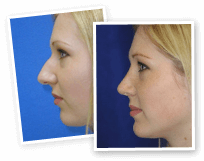 Image of Rhinoplasty Gallery Gallery