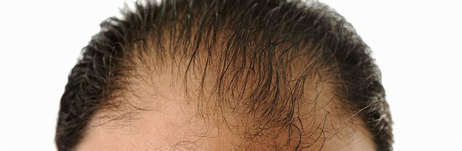 ACell + PRP for Hair | Non-Surgical Hair Restoration