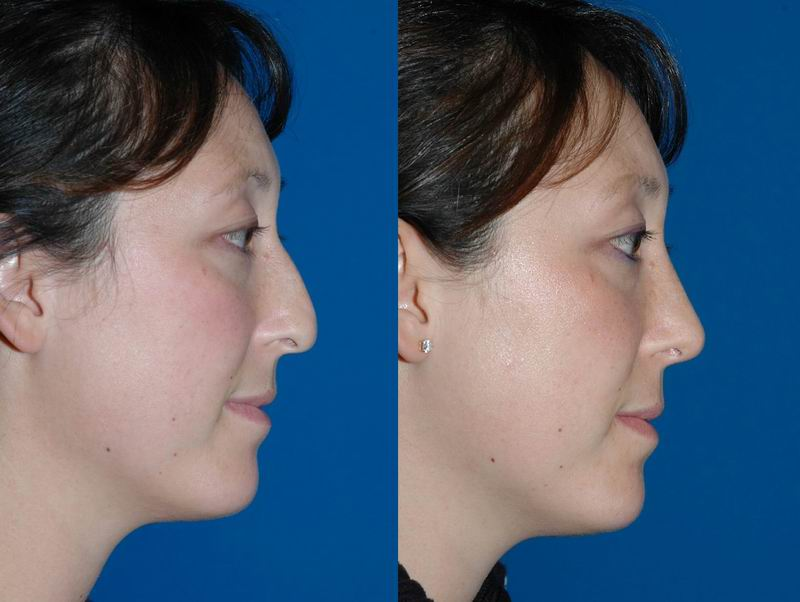 asian_rhinoplasty_04.jpg