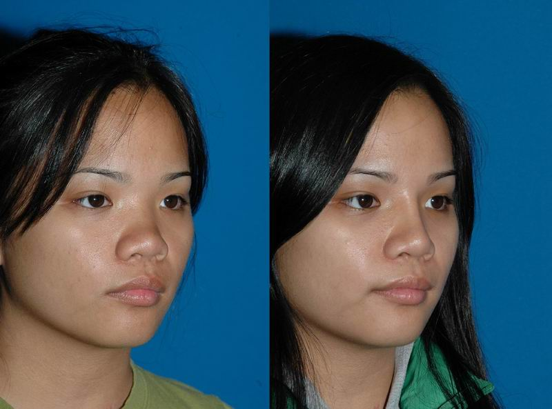 asian_rhinoplasty_12.jpg
