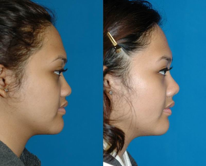 asian_rhinoplasty_26.jpg