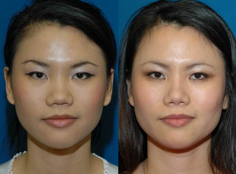 asian_rhinoplasty_27.jpg