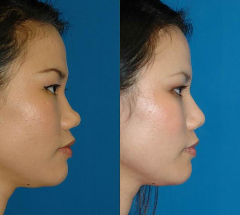 asian_rhinoplasty_28.jpg