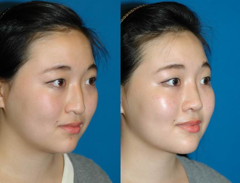 asian_rhinoplasty_33.jpg