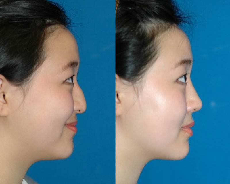 asian_rhinoplasty_34.jpg
