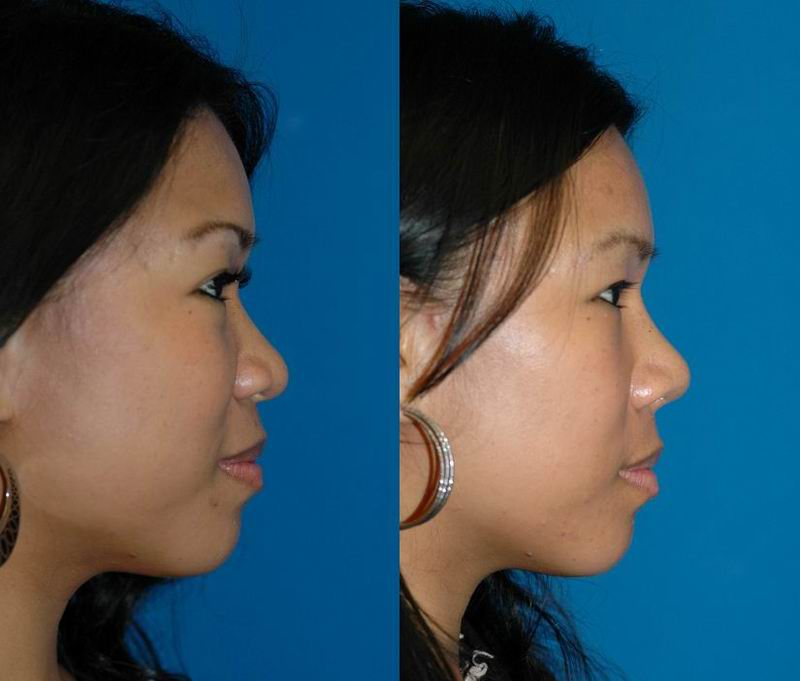 asian_rhinoplasty_38.jpg