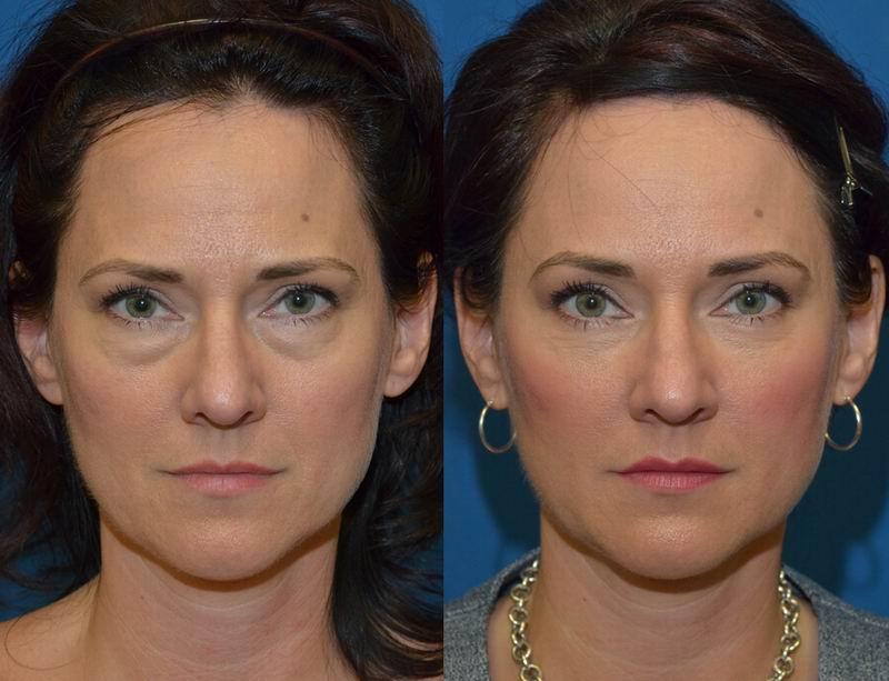 Lower Eyelid Lift Eye Bag Removal