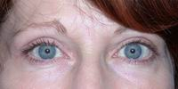 After upper blepharoplasty and full face laser resurfacing