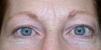 Before upper blepharoplasty and full face laser resurfacing