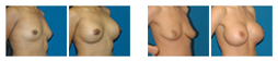 breast-augmentation.png