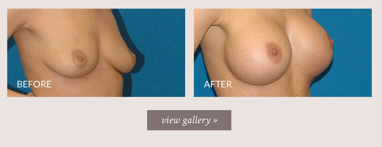 breast-implant-gallery.jpg