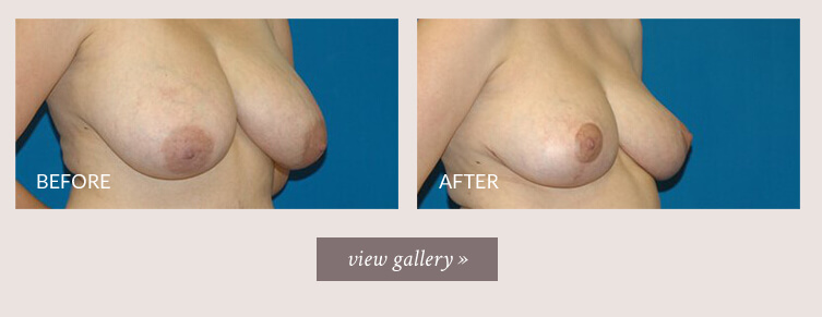 breast-reduction-gallery.jpg