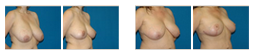 breast-reduction.png