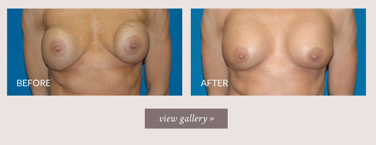 breast-revision-gallery.jpg