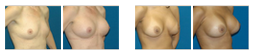 breast-revision.png