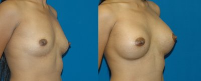 Breast augmentation with 375 cc silicone breast implants by Jourdan Gottlieb, MD