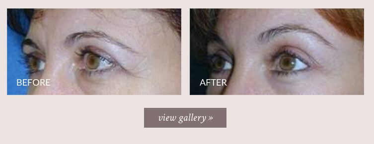 brow-lift-gallery.jpg