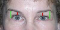 After a brow lift the eyes are more open and rested, and less angry looking