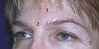 Aging of the brow also creates deep wrinkles around the forehead