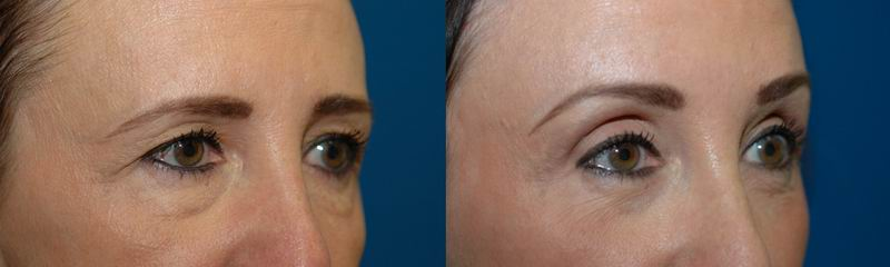 brow_lift_seattle10.jpg