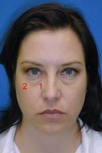 Early midface aging in a woman of her 40s