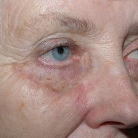 After cheek reconstruction by Sam Naficy, MD following removal of a lentigo maligna melanoma