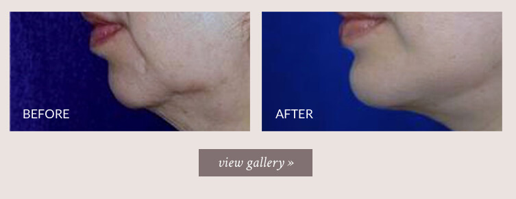 chin-implant-gallery.jpg