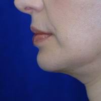 After chin augmentation, neck liposuction, face and neck lift