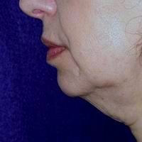 Before chin augmentation, neck liposuction, face and neck lift