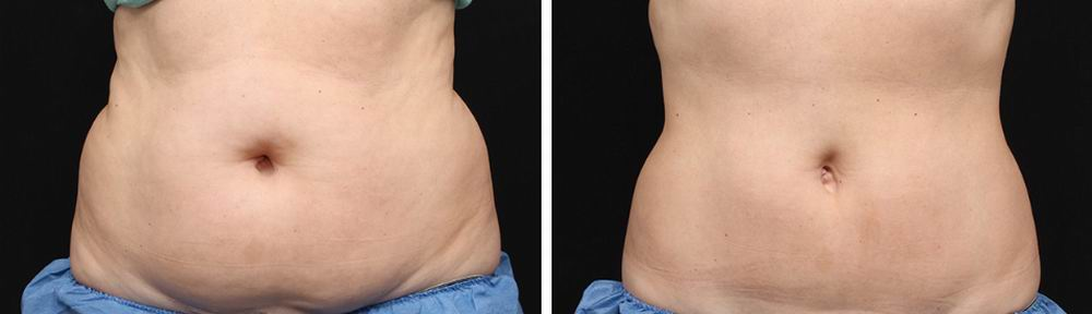 Image result for coolsculpting before and after