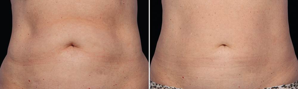 coolsculpting_before_after_03.jpg