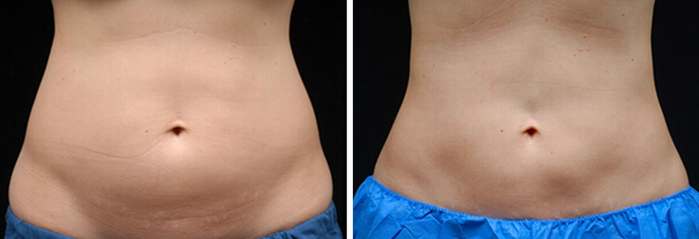 coolsculpting_before_after_04a.jpg