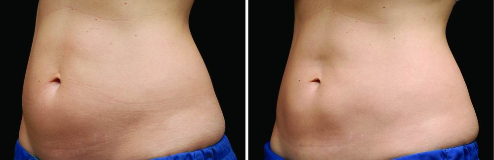 coolsculpting_before_after_04b.jpg