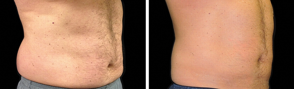 coolsculpting_before_after_05.jpg