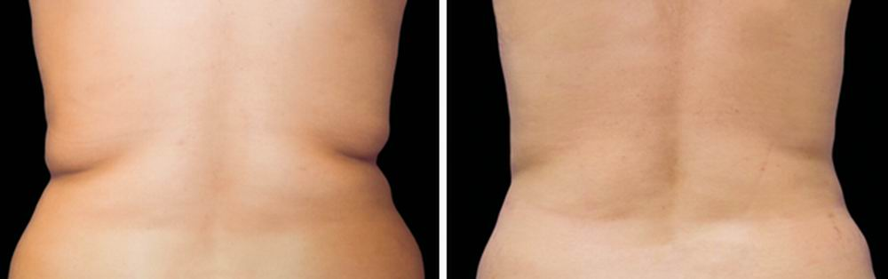 coolsculpting_before_after_06.jpg