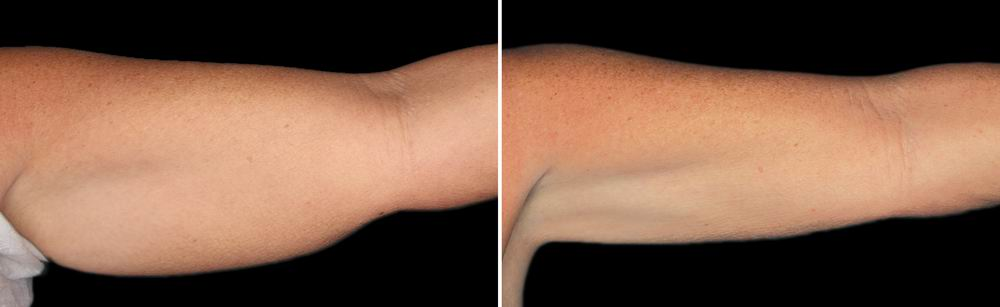 coolsculpting_before_after_09.jpg