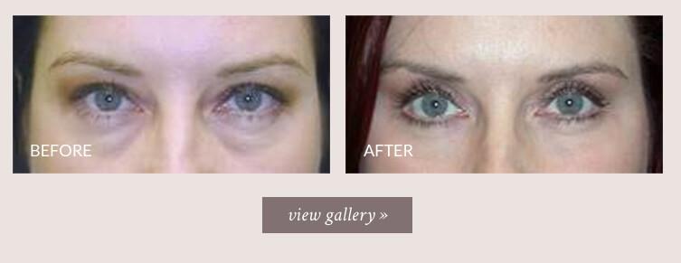 Eyelid Lift Seattle   Blepharoplasty Specialist   Cosmetic Eyelid