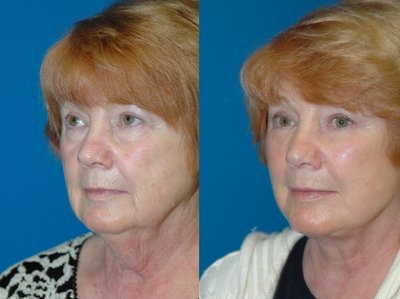 face lift before and after 3/4 angle
