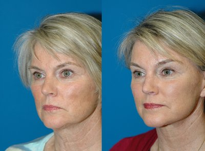 Brow lift and deep plane Face lift by Sam Naficy, MD