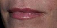 After restylane lip augmentation