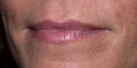 Before restylane lip augmentation