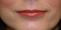After lip augmentation with fat, face lift