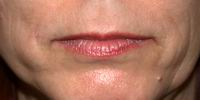 Before lip augmentation with fat, face lift