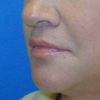 After lip lift, corner of the mouth lift, and lip augmentation with fat