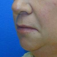 Before lip lift, corner of the mouth lift, and lip augmentation with fat