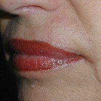 After lip reconstruction by Sam Naficy, MD following removal of a basal cell carcinoma