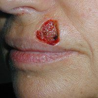 Before lip reconstruction by Sam Naficy, MD following removal of a basal cell carcinoma