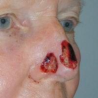 Before nasal reconstruction using a regional flap