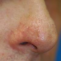 After nasal reconstruction using a skin and cartilage graft