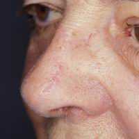 After nasal reconstruction using primary closure